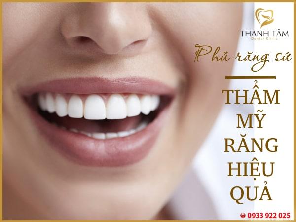 chi phí phủ răng sứ