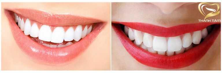 Bọc răng sứ chất lượng