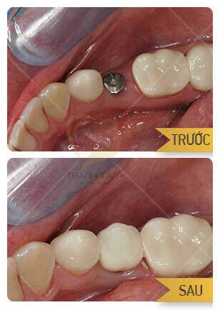 cấy ghép implant phục hồi răng bị mất