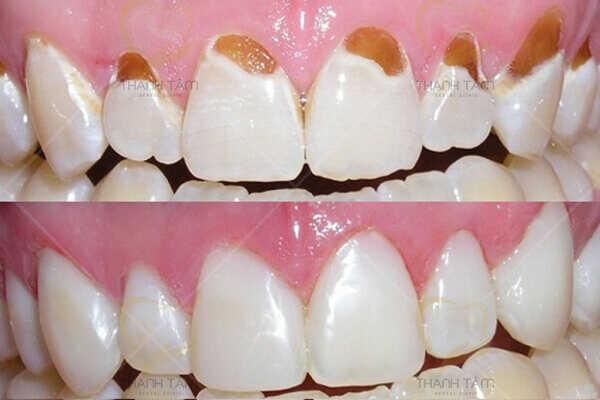 Hàn trám răng