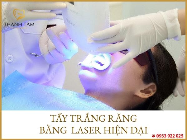 Điều trị răng nhiễm Tetracycline bằng tia Laser