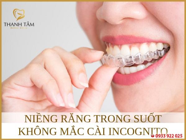 niềng răng trong suốt không mắc cài