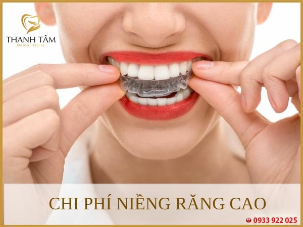 chi phí niềng răng cao