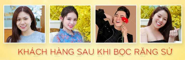 boc-rang-su-bao-hanh-bao-lau-hinh-khach-hang