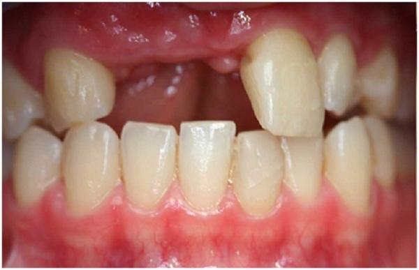 hàm răng bị mất răng
