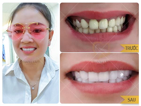 Hình ảnh khách hàng Dán sứ Emax và đính đá răng