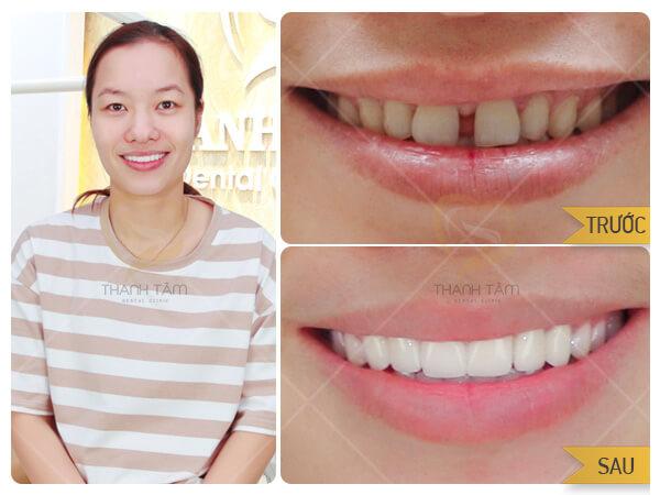 Khách hàng Lưu Thị Thuý Hằng bọc răng sứ khắc phục răng thưa