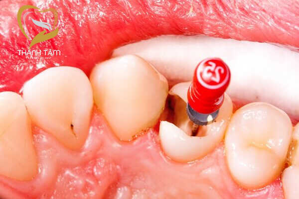 Phủ răng sứ cho răng đã lấy tủy