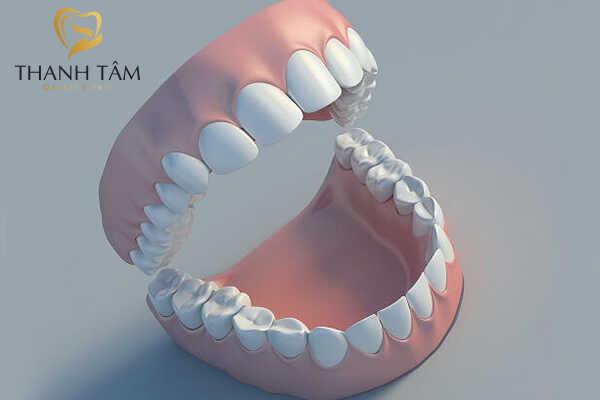 Răng người chính xác có 32 chiếc