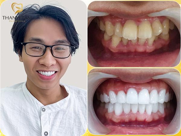 Răng hô là gì?