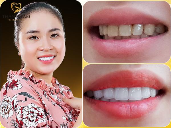 Cách khắc phục răng hô bằng bọc răng sứ