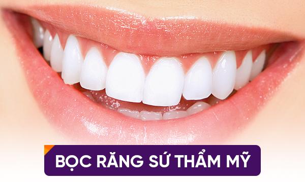 con gái răng hô có xấu không?
