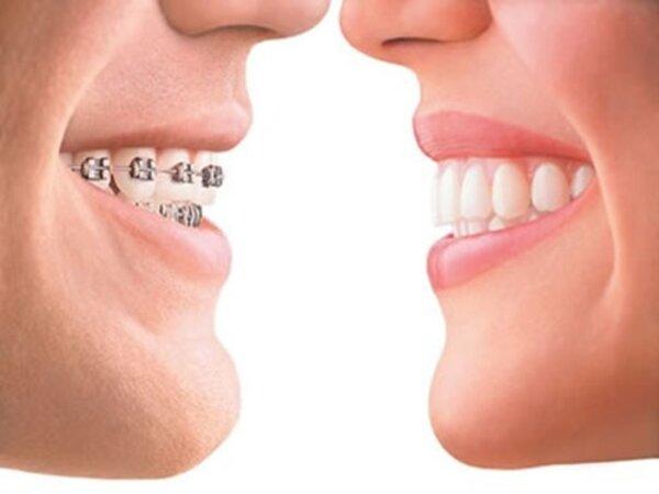 Răng móm là như thế nào?