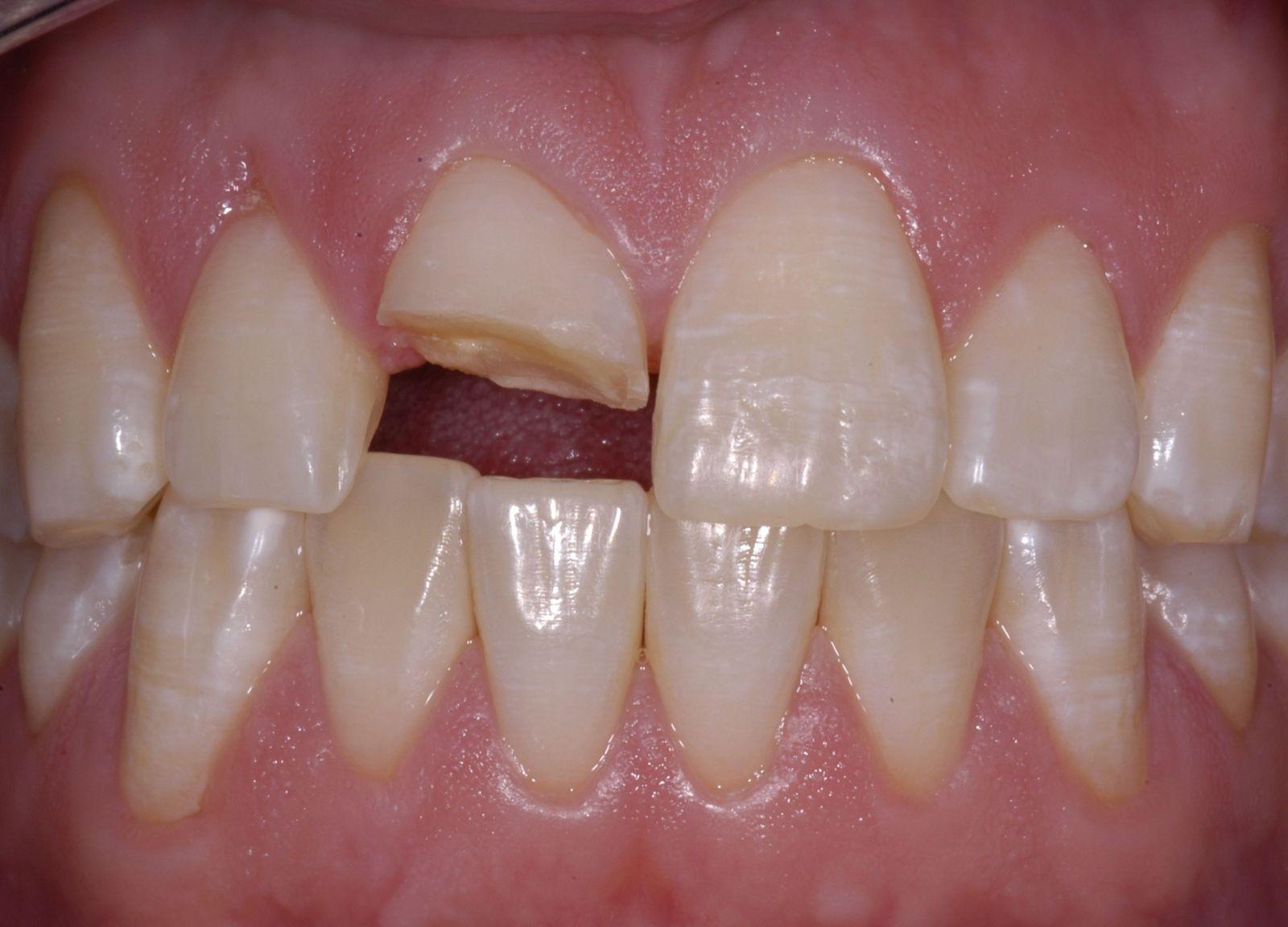 Khi nào nên bọc sứ răng cửa