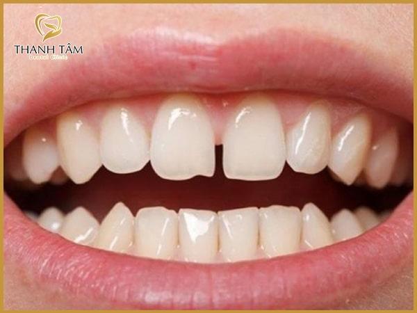 Vì sao phải điều trị răng thưa