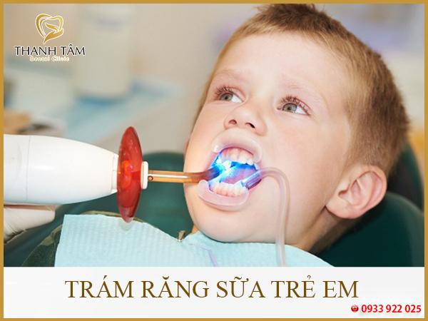 Trám răng sữa trẻ em