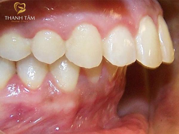 răng hơi hô phải làm sao