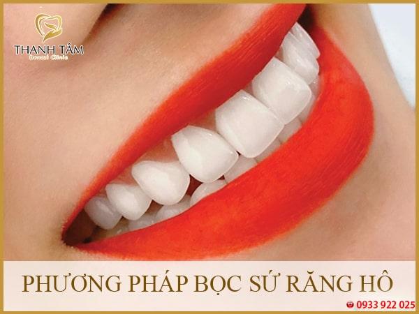 Phương pháp bọc sứ răng hô