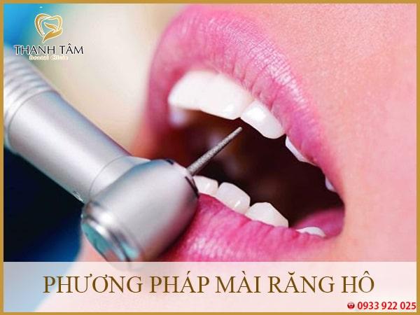 Phương pháp mài răng hô Nha khoa Thanh Tâm