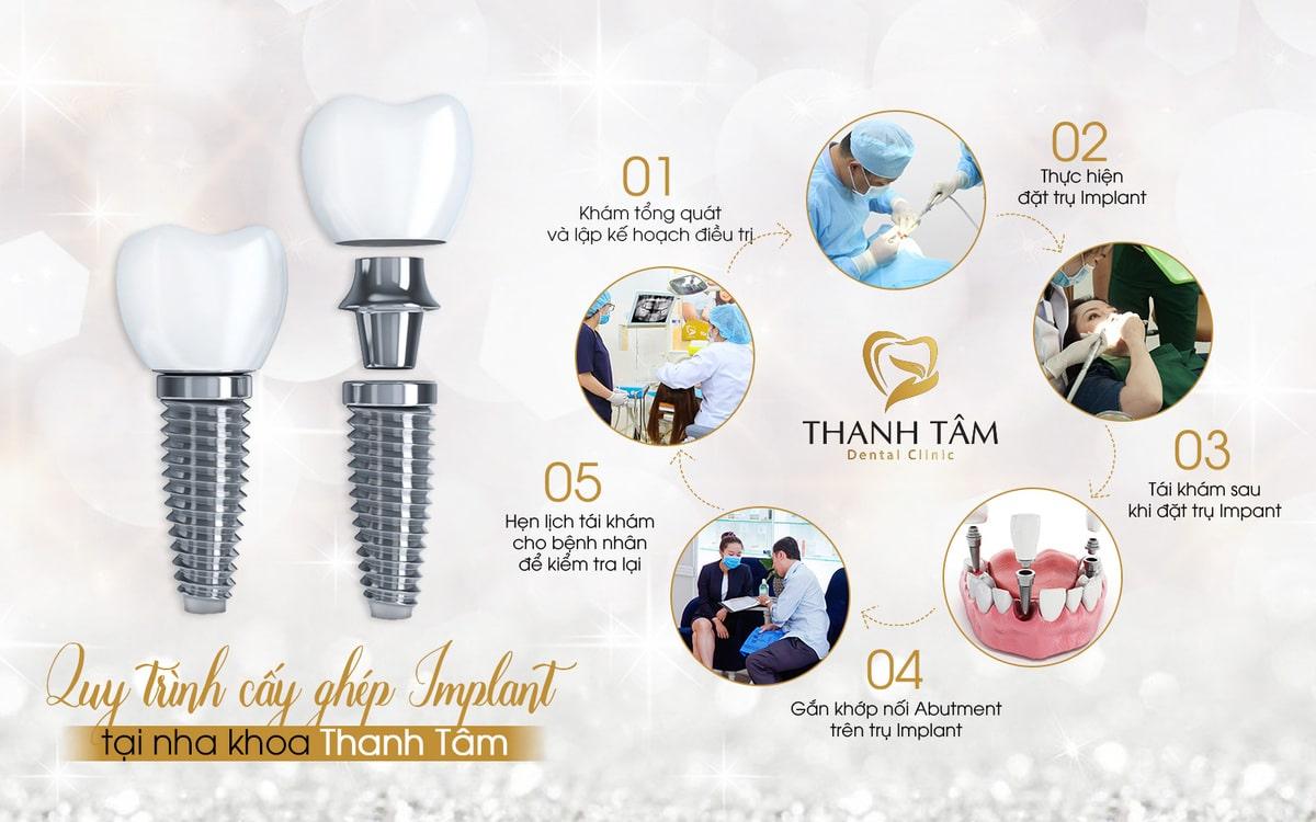 Quy trình cấy ghép Implant tại Nha khoa Thanh Tâm