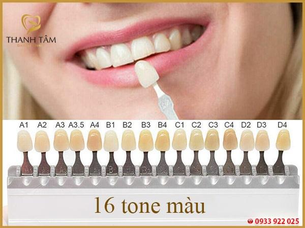 Răng sứ XT bao gồm 16 tone màu Vita-min