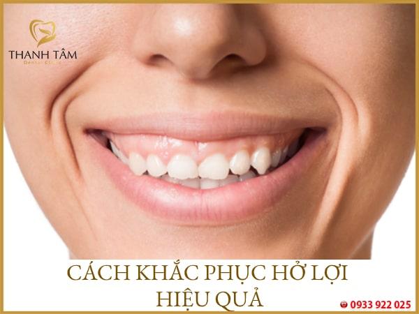 Răng hở lợi