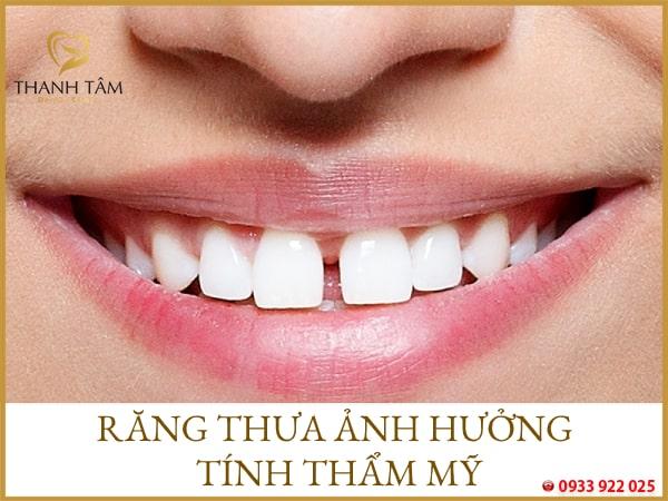 răng thưa
