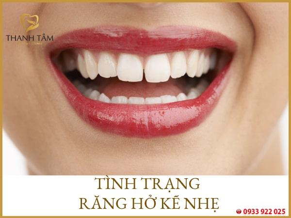 răng thưa nhẹ