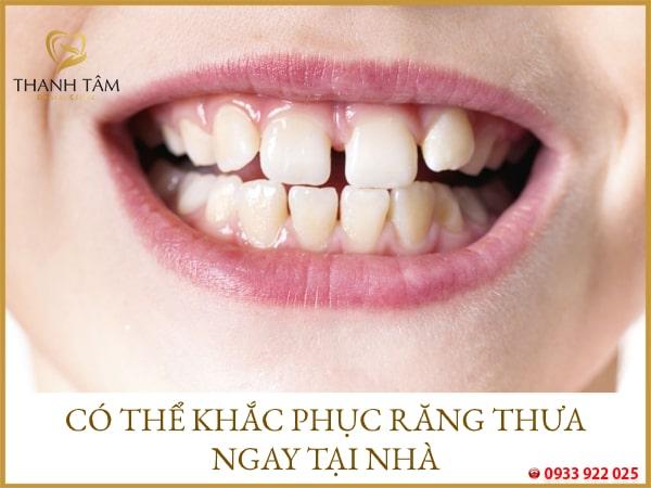 khắc phục răng thưa tại nhà