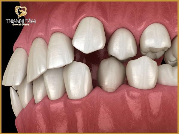 Răng hàm trên nhô ra phía trước