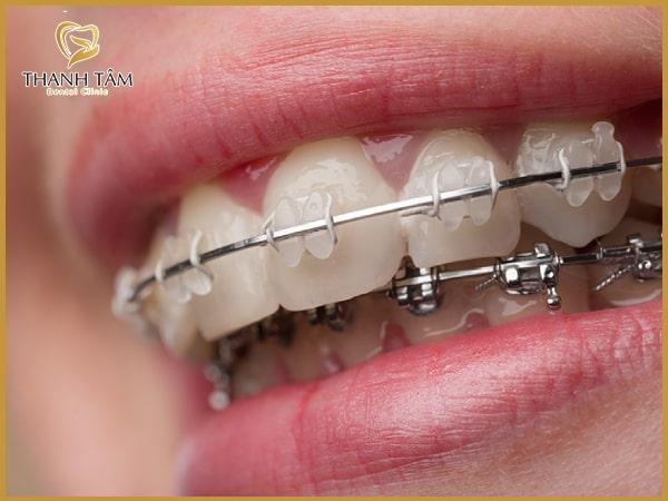 Niềng răng - cách khắc phục răng hô hiệu quả