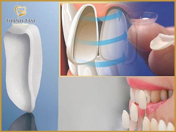 Dán răng sứ có thể bảo tồn răng thật rất tốt