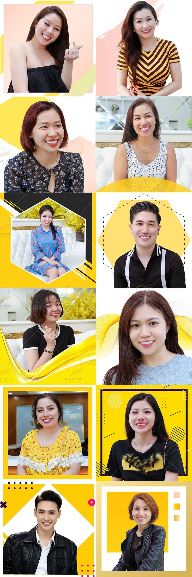 hình ảnh khách hàng bọc răng sứ tại nha khao Thanh Tâm