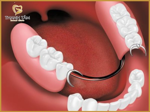 Phương pháp làm răng tháo lắp