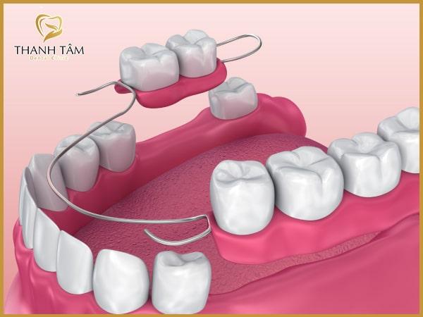 Phương pháp làm răng tháo lắp phục hình răng mất hiệu quả