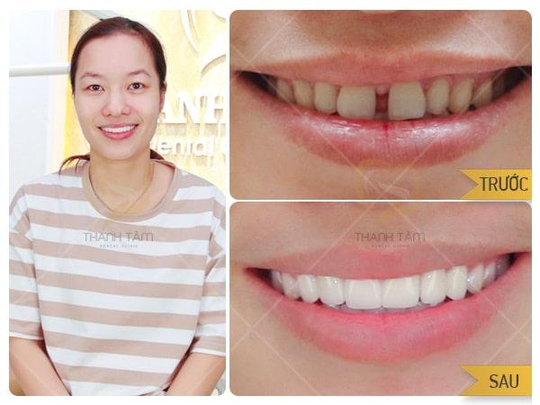 Bọc răng sứ tại nha khoa Thanh Tâm