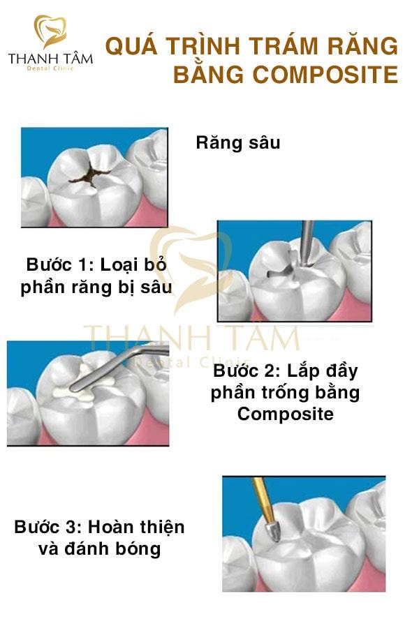 quá trình trám răng-min