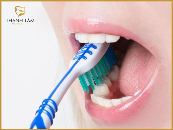 Vệ sinh răng miệng nhẹ nhàng, đúng cáchChăm sóc răng miệng chính là một trong những điều bạn cần quan tâm nhiều nhất sau khi thực hiện cấy ghép Implant. Không nên đánh răng quá mạnh vì rất dễ gây tổn thương đến mô nướu. Đặc biệt tránh đánh răng vào những ngày đầu mới cấy ghép Implant. Vì rất có thể việc chải răng sẽ dẫn đến tình trạng chảy máu vùng cấy ghép. Với những chiếc răng khác, khách hàng có thể chải răng một cách nhẹ nhàng, cẩn thận tránh ảnh hưởng đến những vùng lân cận.