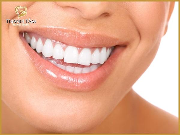 Phương pháp bọc răng sứ mang lại hiệu quả thẩm mỹ cao