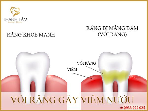 răng bị vôi gây viêm nướu