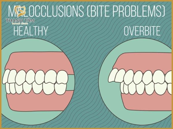 răng hô là như thế nào