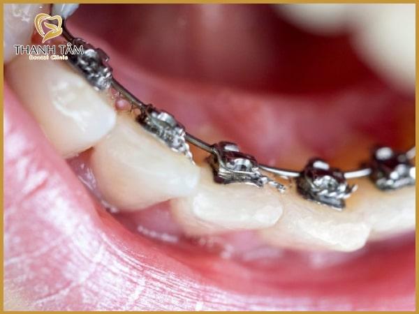 kinh nghiệm niềng răng