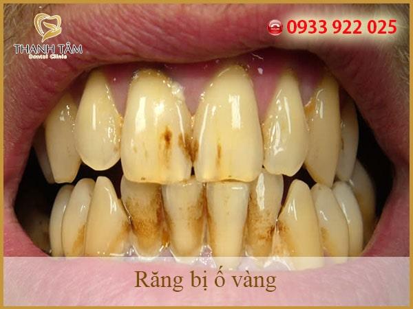 chữa vàng răng