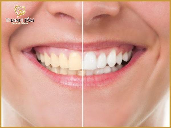 tẩy trắng răng quận Tân Phú