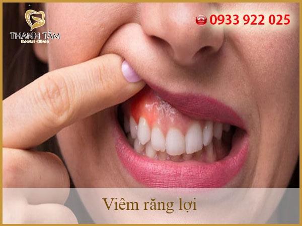 viêm răng lợi