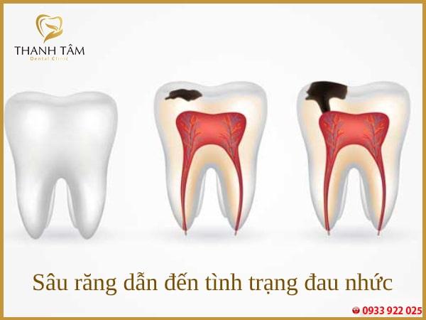 Những chiếc răng sâu thường rất nhạy cảm