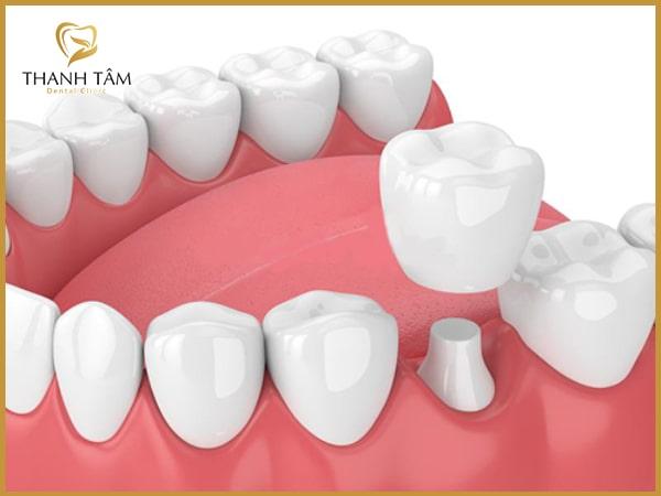 dán răng sứ và bọc răng sứ cái nào tốt hơn