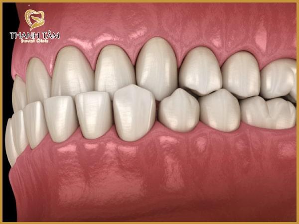 Răng móm ảnh hưởng đến phát âm