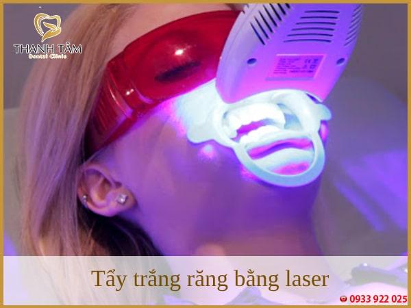 có nên tẩy trắng răng bằng laser