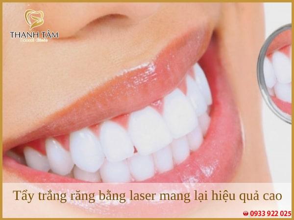 có nên đi tẩy trắng răng